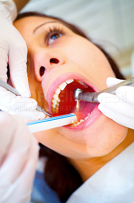 Buy stock photo A cropped shot of a young woman having a filling done at the dentist