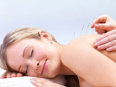 Buy stock photo Acupuncture needles on the back of a beautiful woman - Portrait of a pretty lady in acupuncture therapy at the day spa