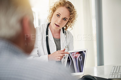 Buy stock photo Shot of a doctor showing a senior patient a bone scan on a digital tablet while sitting in her office