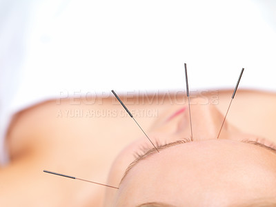 Buy stock photo Acupuncture healing beautiful woman - Portrait of a woman in acupuncture therapy at the day spa