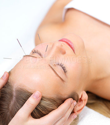 Buy stock photo Acupuncture therapy - alternative medicine. Portrait of a beautiful woman in acupuncture therapy
