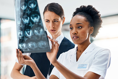 Buy stock photo Cropped shot of medical practitioners looking at a patient's medical scans