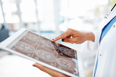 Buy stock photo Cropped shot of a doctor using a digital tablet to look at a brain scan in a hospital