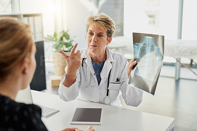 Buy stock photo Cropped shot of an attractive mature female doctor showing a patient her x rays in the hospital