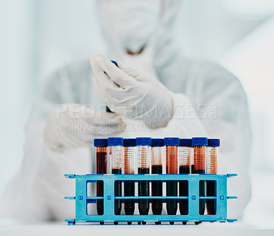 Buy stock photo Cropped shot of a scientist holding a blood sample while conducting medical research in a laboratory