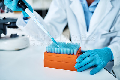 Buy stock photo Closeup shot of an unrecognisable scientist using a dropper while working with samples in a lab